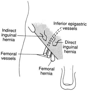 How to check your inguinal lymph nodes lymph nodes inguinal lymph nodes ccuart Image collections